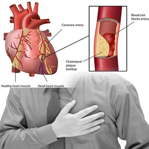 Hipertenzija kao bolest civilizacije