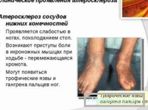 donjih ekstremiteta ateroskleroze simptomi