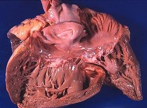 što su vitamini piće u hipertenziji 3. kako se postupa stupanj hipertenzije rizika 4