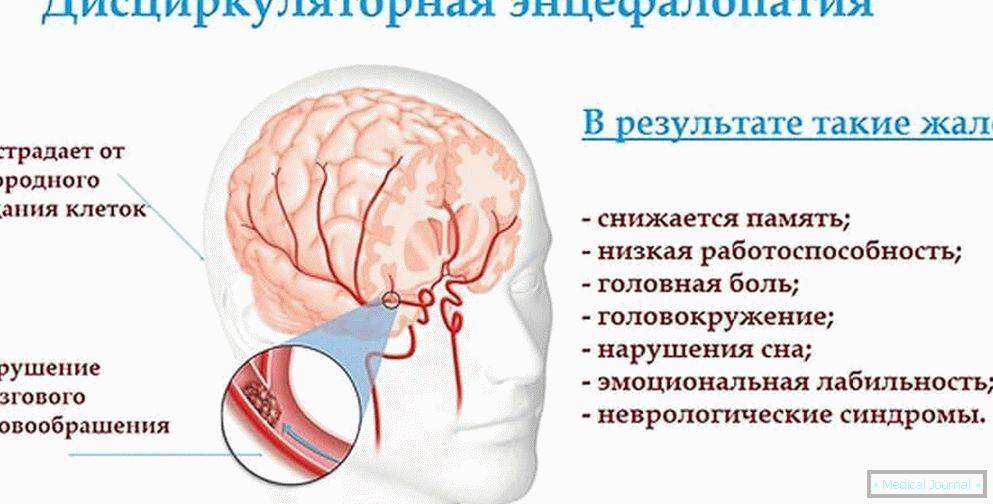 Hipertenzivna retinopatija – Wikipedija