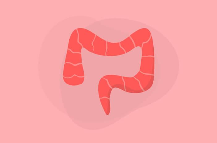 Upalne bolesti crijeva
