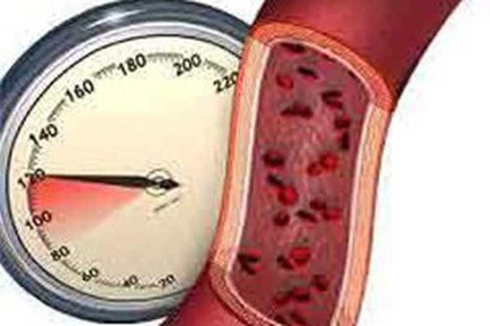 Hipertenzija 1,2 stupnja hipertenzije.