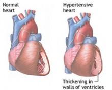 imam visok krvni pritisak, nemaju dovoljno zraka nat koristan teret u hipertenzije