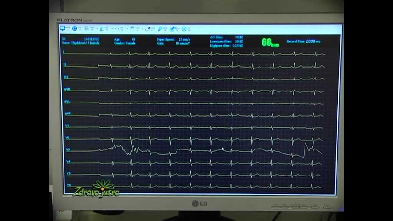 mišljenja bolest hipertenzija standardni tretman hipertenzije u bolnici