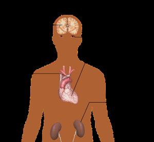 Povišeni krvni tlak (hipertenzija) kod sportaša - Building Body Portal