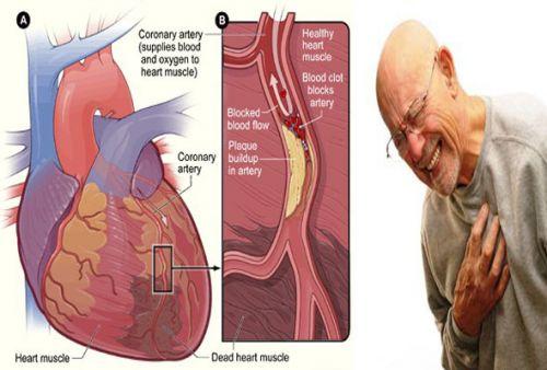 Kardiomiopatije - Zdravo budi