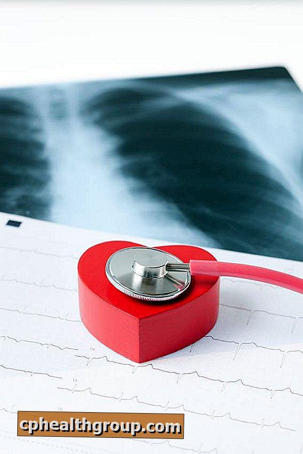 Nasljedna hipertenzija, ishemija ,kako smanjiti puls iznad 80 za hipertenziju