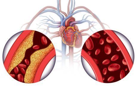 Kako mjeriti tlak mehaničkim tonometarima: korak-po-korak algoritam - Hipertenzija February