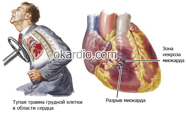 ambulanta hipertenzije hipertenzija i kompresije odjeće