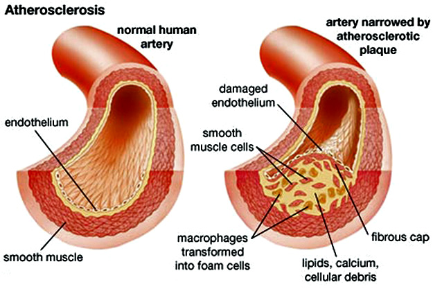 bolest srca, hipertenzija