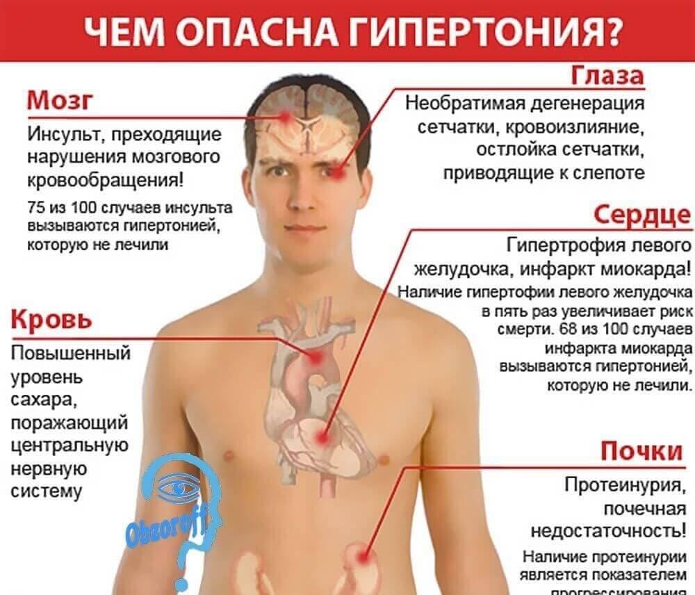 koji liječi hipertenziju kardiolog ili internista hipertenzija u siječnju