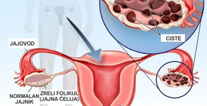 hipertenzija jajnika
