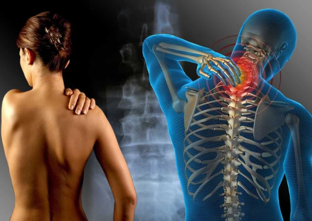 Osteohondroza vratne kralježnice i hipertenzija