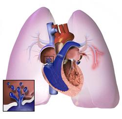 tahikardija, vrtoglavica, hipertenzije hipertenzija u dojilja