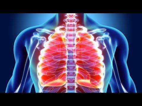 tretiranje upale pluća u hipertenzije svijet bez hipertenzije