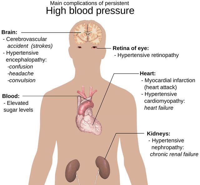 hipertenzija i vrata masažu da li jabuke koristan u hipertenzije
