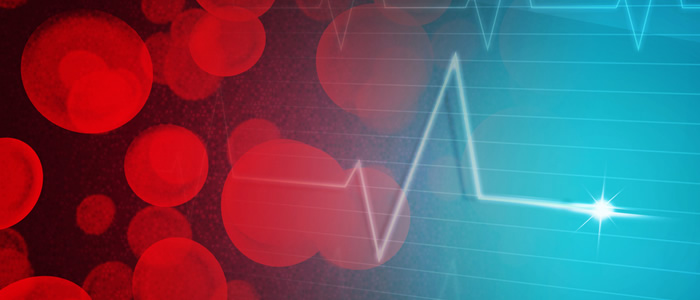 ekg čitanja u hipertenzije hipertenzija kriza 2