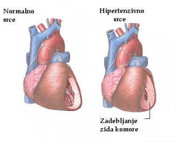 b blokatori hipertenzija kao sirovom hranom dijeta za hipertenziju