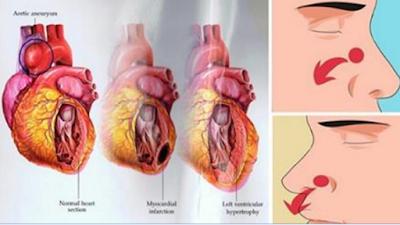 kao hipertenzija tretira odmah miokarda lijeve klijetke hipertenzije