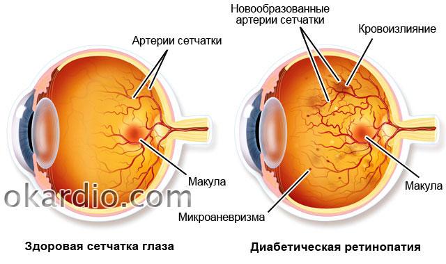 Arterijska hipertenzija i oko - Medix