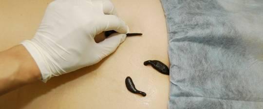 formulacija pijavice dijagram hipertenzije