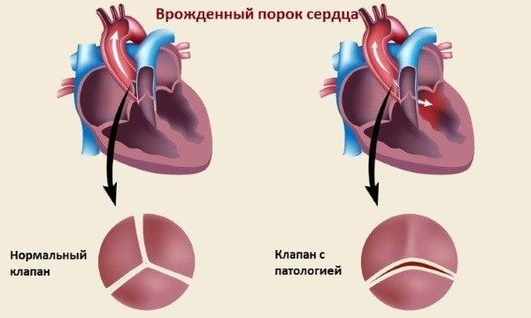 vrtoglavica sredstava za hipertenziju