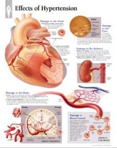 hipertenzija spavati na visokim jastucima hipertenzija e.