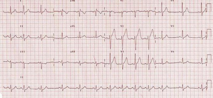 , aritmija, hipertenzija, hipotenzija. definirati