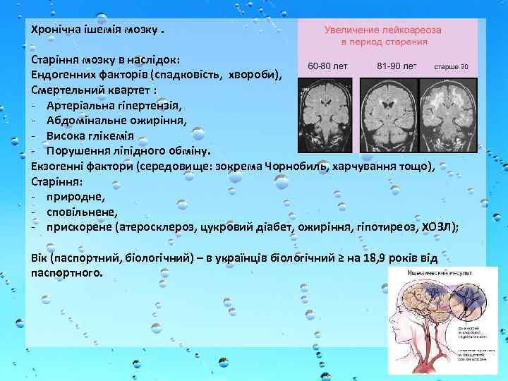 Dr. Jasmin Čaluk: Kardiovaskularna oboljenja kod osoba s dijabetesom | unknown-days.com