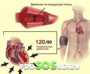 hipertenzija često događa