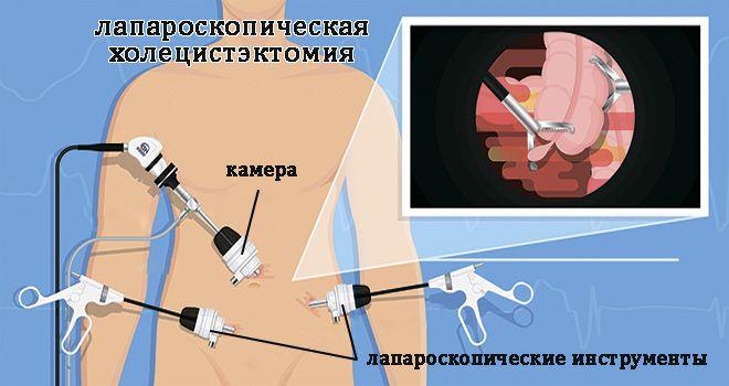 imenovanje invalidnosti hipertenzije vazodilatatori injekcije u hipertenzije