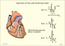 Dijastolička disfunkcija srca - 2. dio