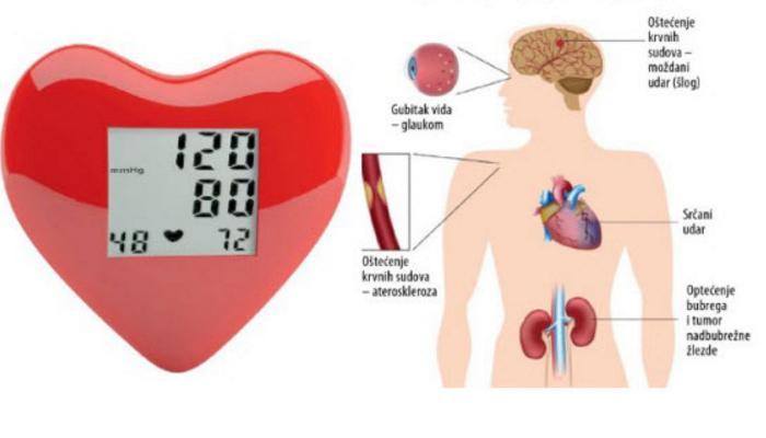 moždani udar i hipertenzija lijekovi