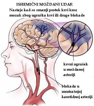 Liječenje hipertenzije tijekom uzimanja neuro