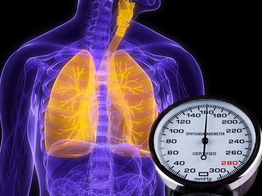 Kislovodsk hipertenzija ostatak