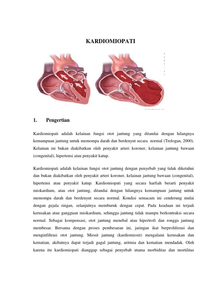 hipertenzije, kardiomiopatija