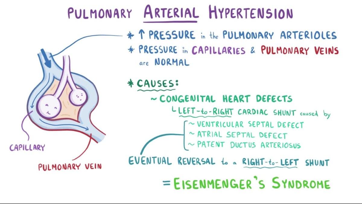 bilo kronične bolesti hipertenzija
