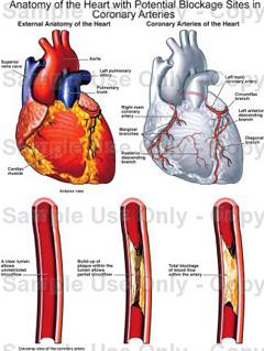 Esencijalna hipertenzija – što je, simptomi i liječenje