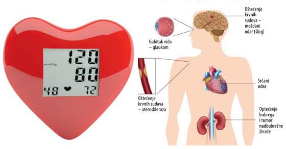 koga kontakt s hipertenzijom