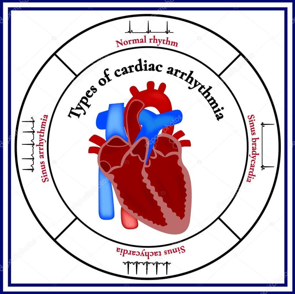 vfs hipertenzija hipertenzija deltoids