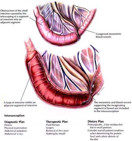 Može li liječenje hipertenzije poboljšati dijastoličku disfunkciju?