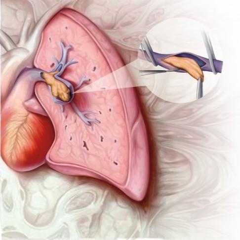 hipertenzija kontracepcije