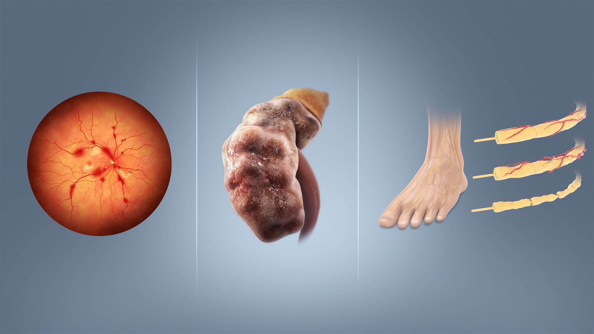 Nasljedni dijabetes i hipertenzija