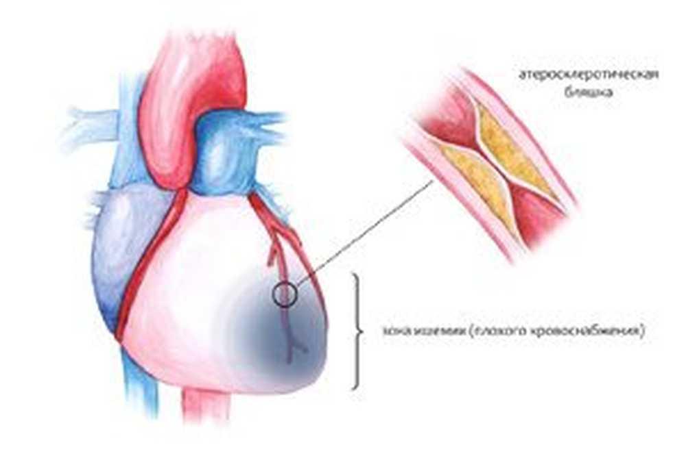 gdje liječenje hipertenzije ufa