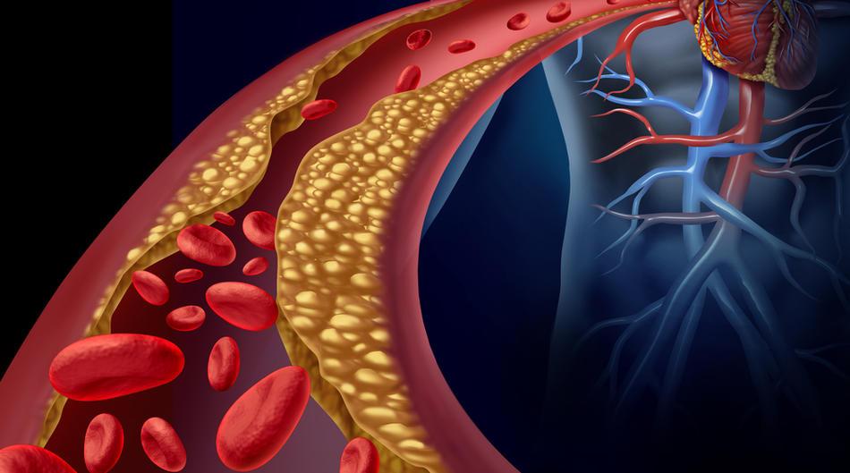 zastoja hipertenzija hipertenzija i prehrane pravila