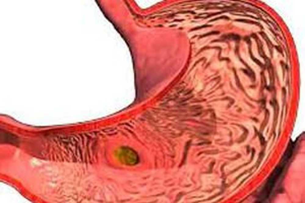 avokado i hipertenzija blokatori u hipertenzije