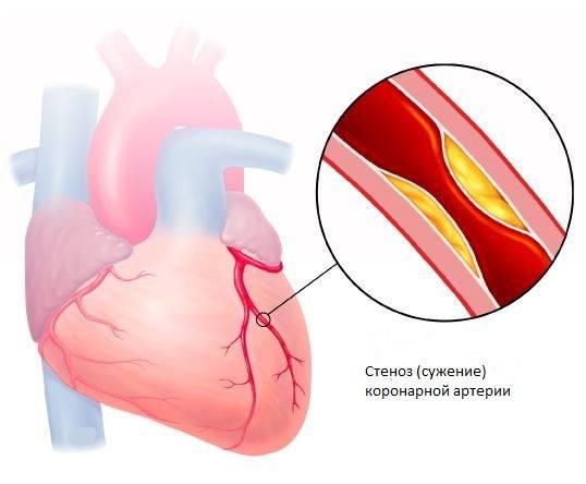 sinusnu tahikardiju, hipertenziju humani hipertenzija slika