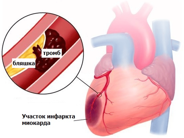 bol u srcu daje na lopatici