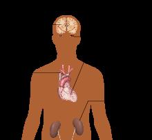 Anamneza rizika od arterijske hipertenzije 3. stupnja rizika 3