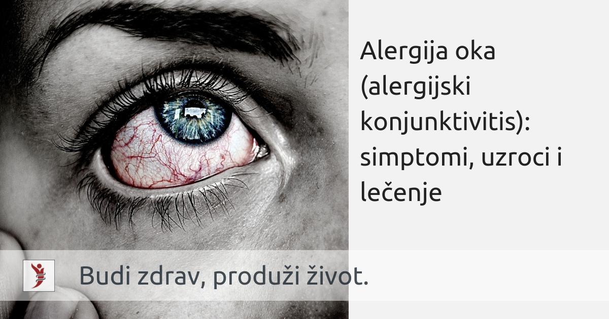 kako odrediti oka na dnu hipertenzije